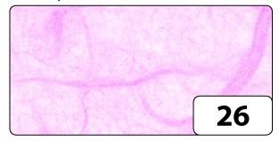 Strohseide / Faserseide